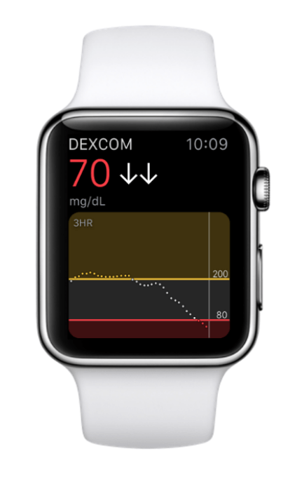 Measuring glucose through the Apple Watch can take several years