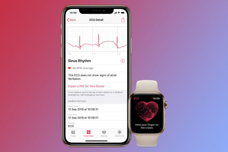 "The ""Support"" application in iOS allows you to send a diagnosis to Apple"